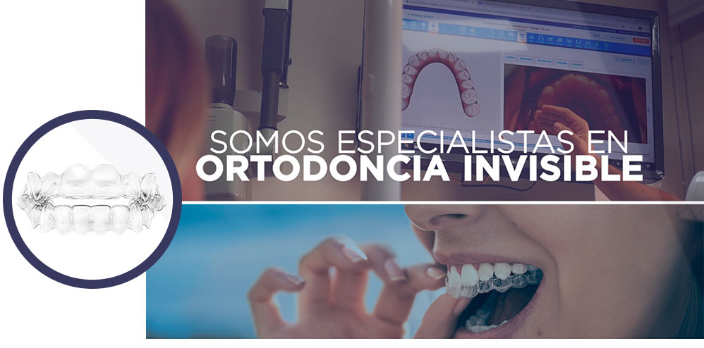 clinica-dental-en-palencia