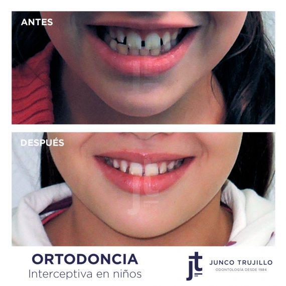 ortodoncia-interperceptiva