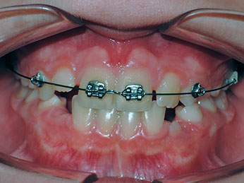 ortodoncia-convencional-niños