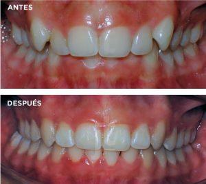 ortodoncia-en-adolescencia-palencia