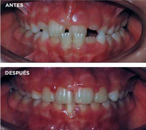 ortodoncia-en-niños