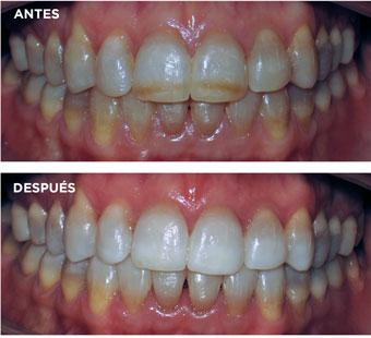 blanquear-dientes-en-palencia