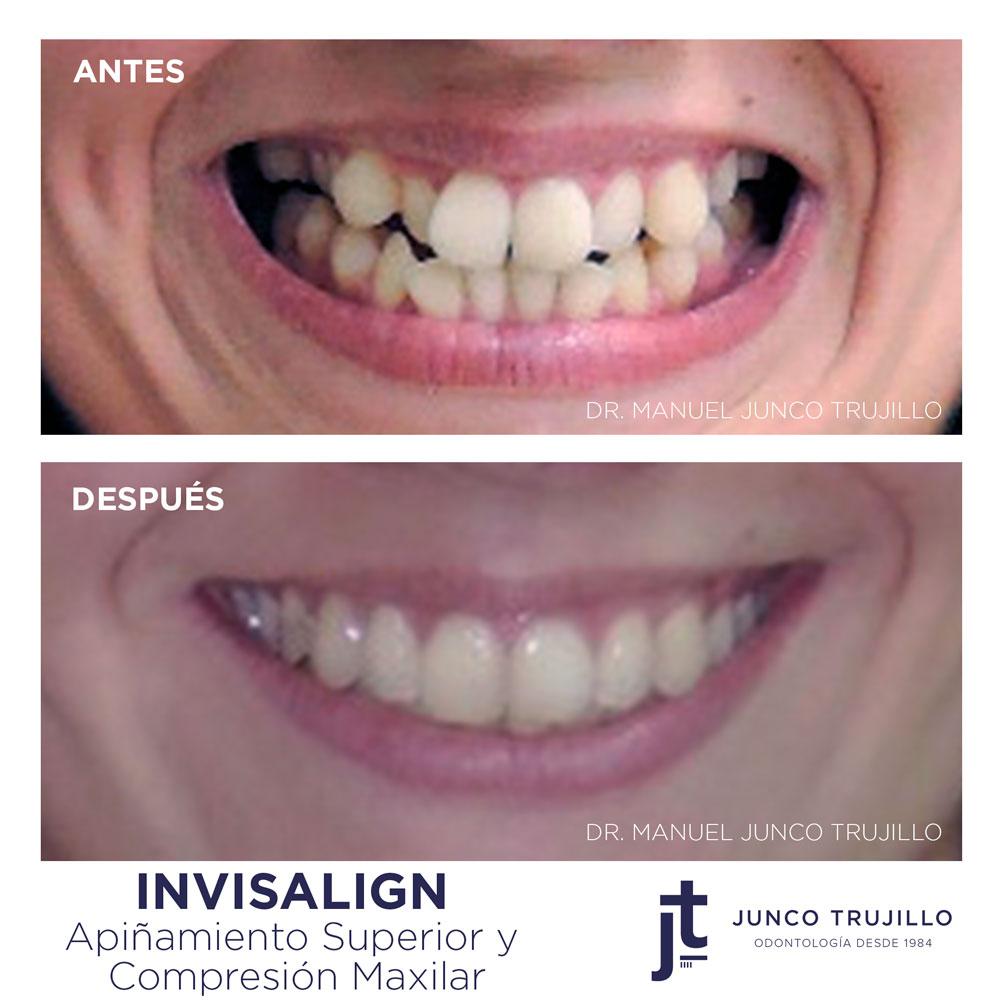 invisalign-clinica-dental-junco-trujillo