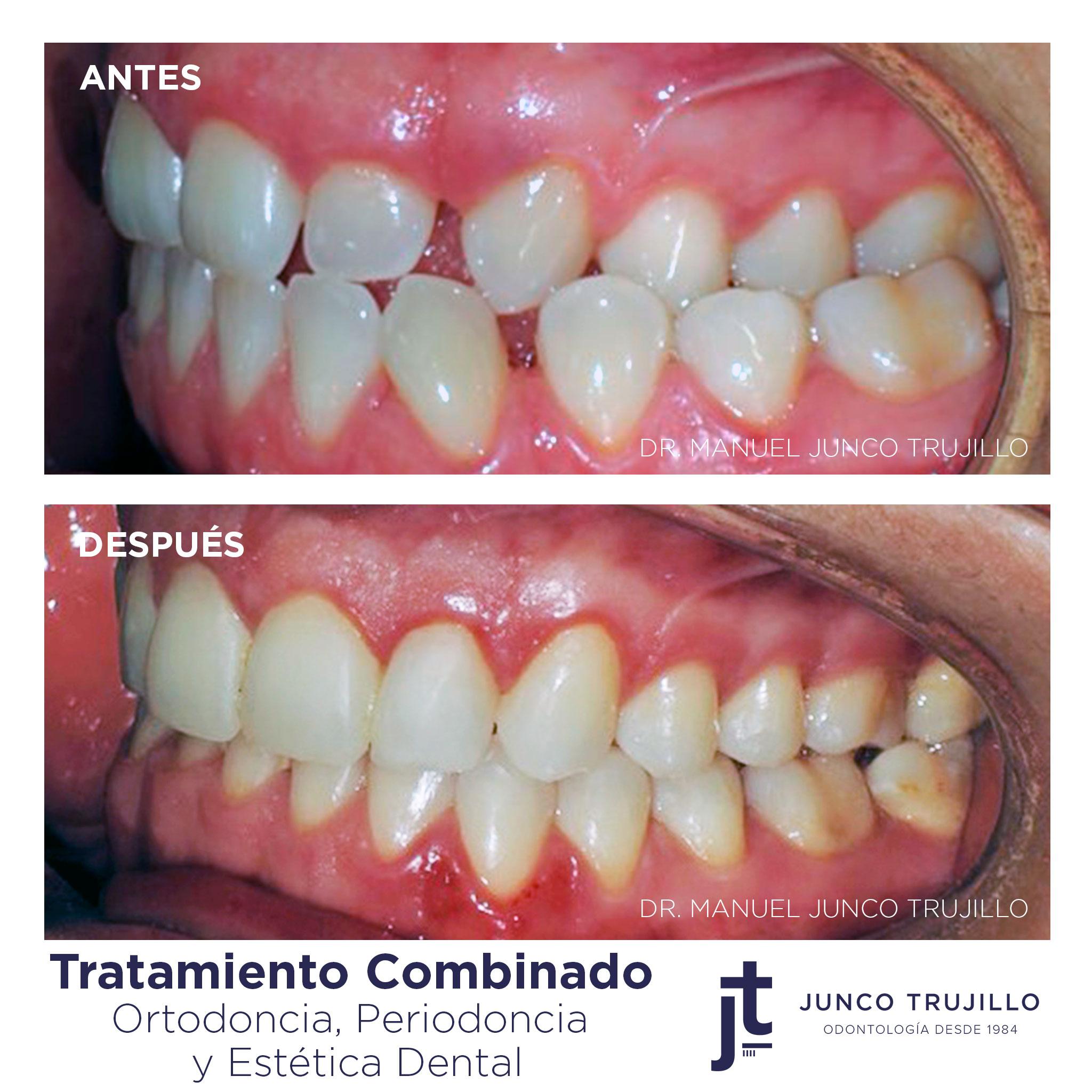 caso-ortodoncia-en-palencia