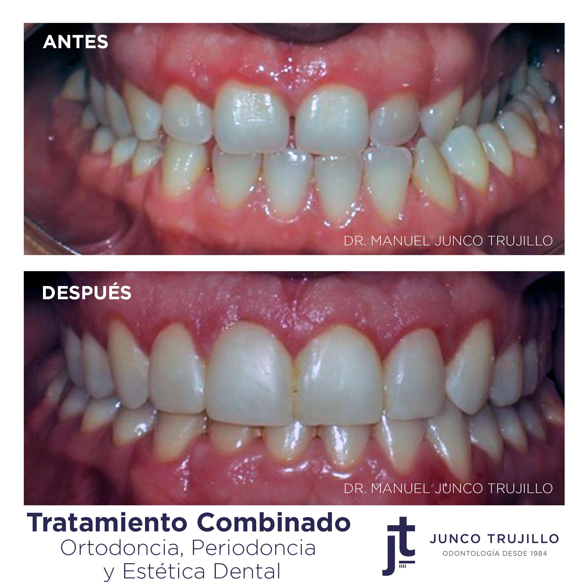 ortodoncia-en-palencia