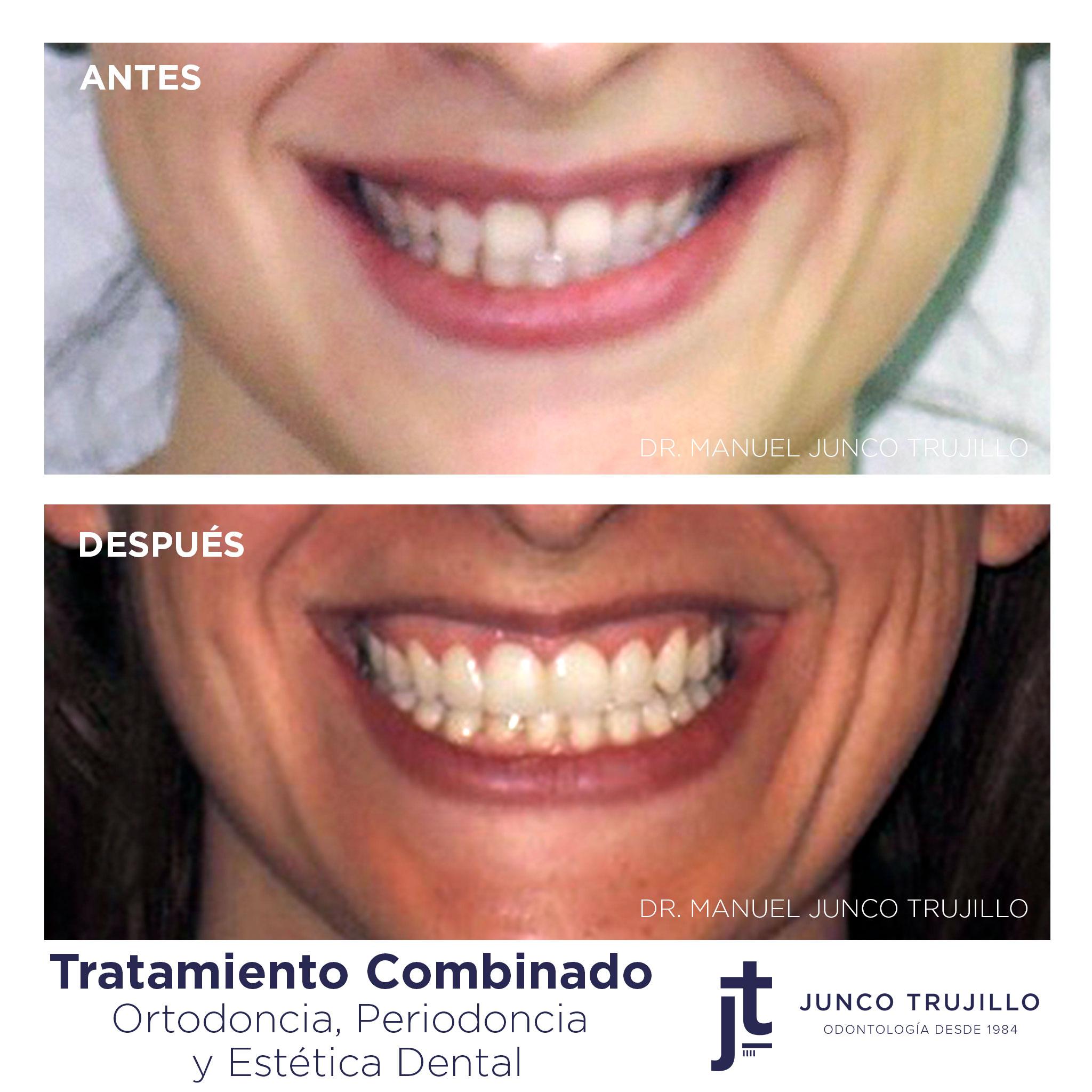 periodoncia-en-palencia
