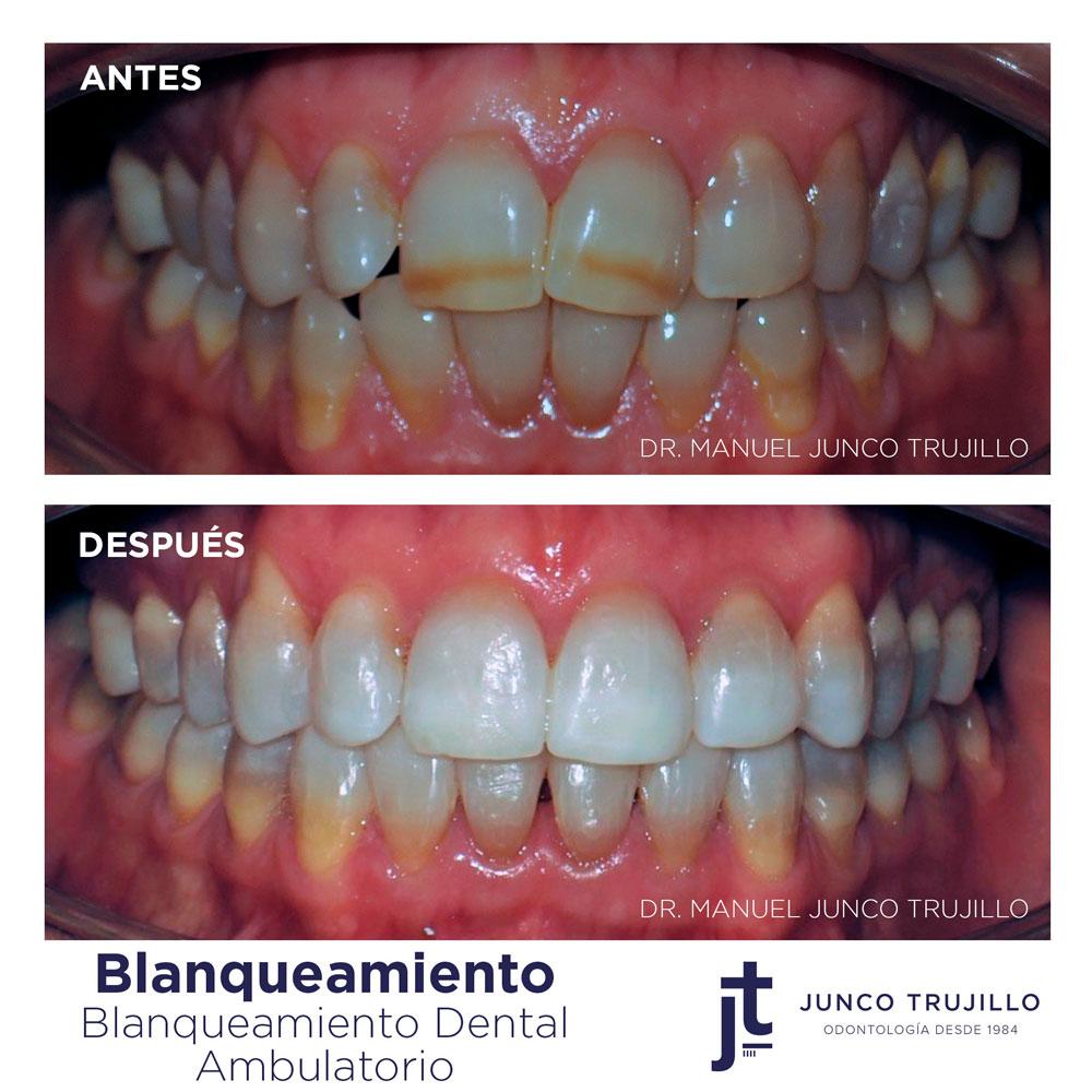 blanqueamiento-dental-en-palencia
