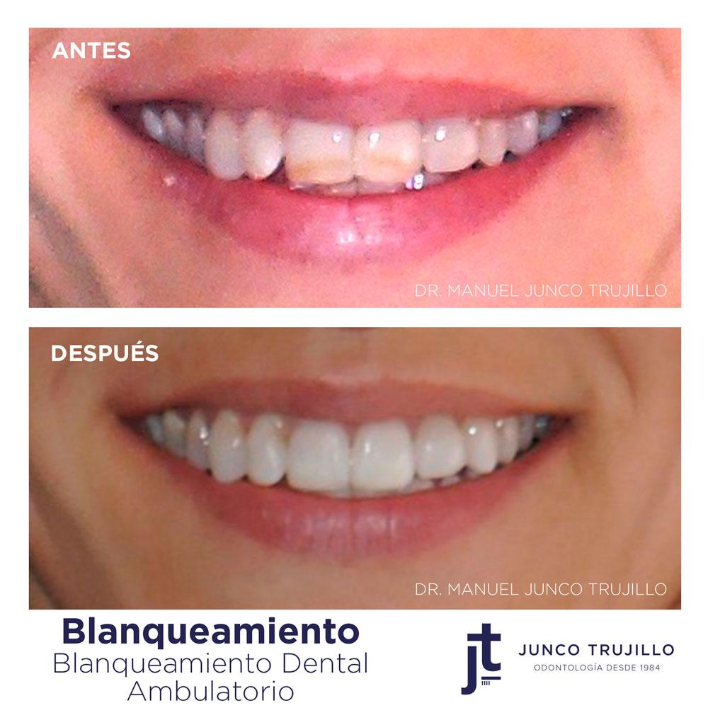 blanqueamiento-dental-palencia