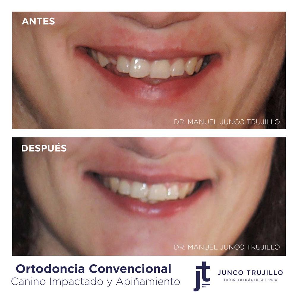 clinica-dental-en-palencia
