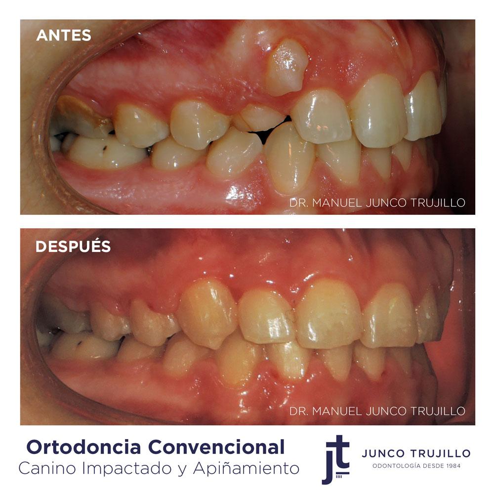 ortodoncia-convencional-en-palencia