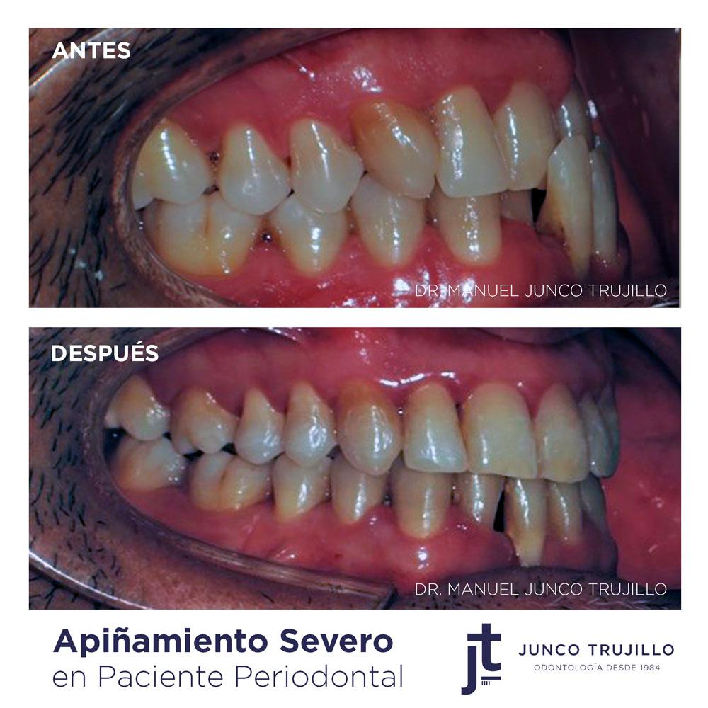 apinamiento-dental-en-palencia