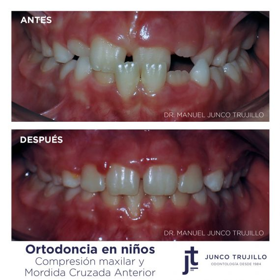 ortodoncia-en-ninos-palencia