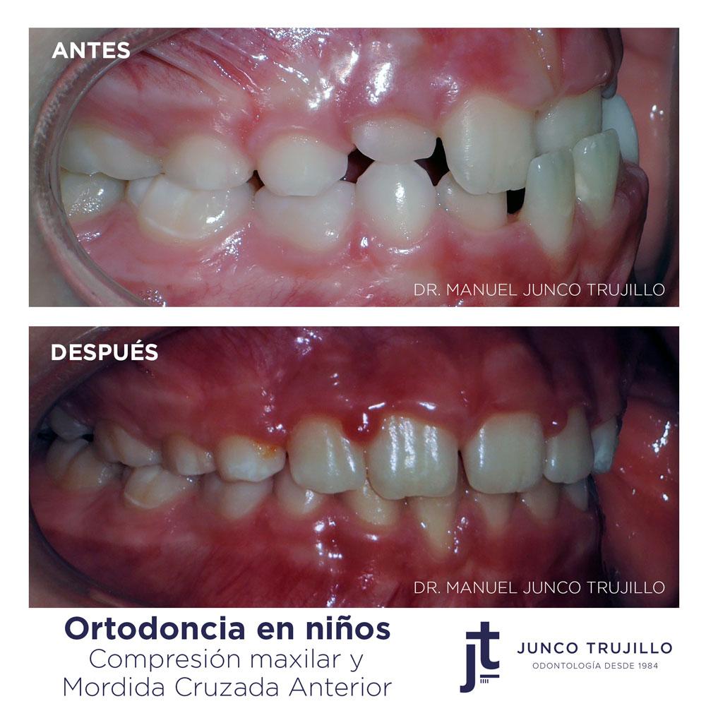 ortodoncia-interceptiva-en-palencia