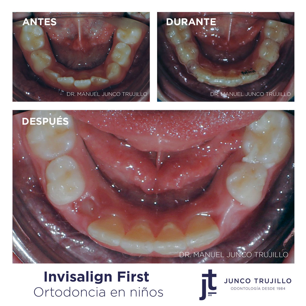 invisalign-first-en-palencia