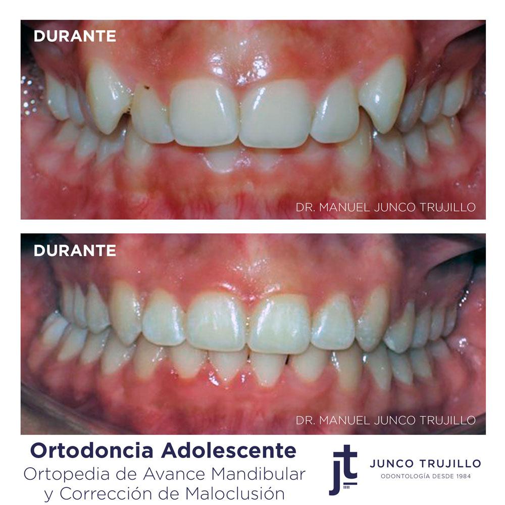 Ortodoncia-adolescente-en-palencia