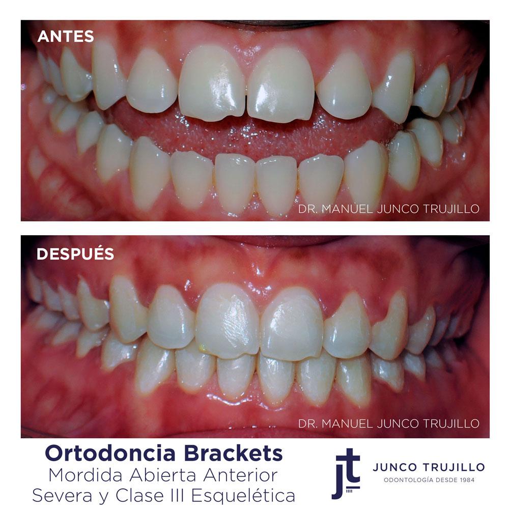 ortodoncia-brackets-en-palencia