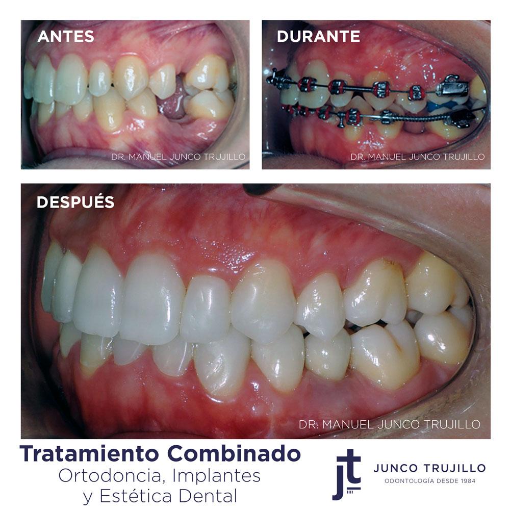 implantes-de-dientes-en-palencia
