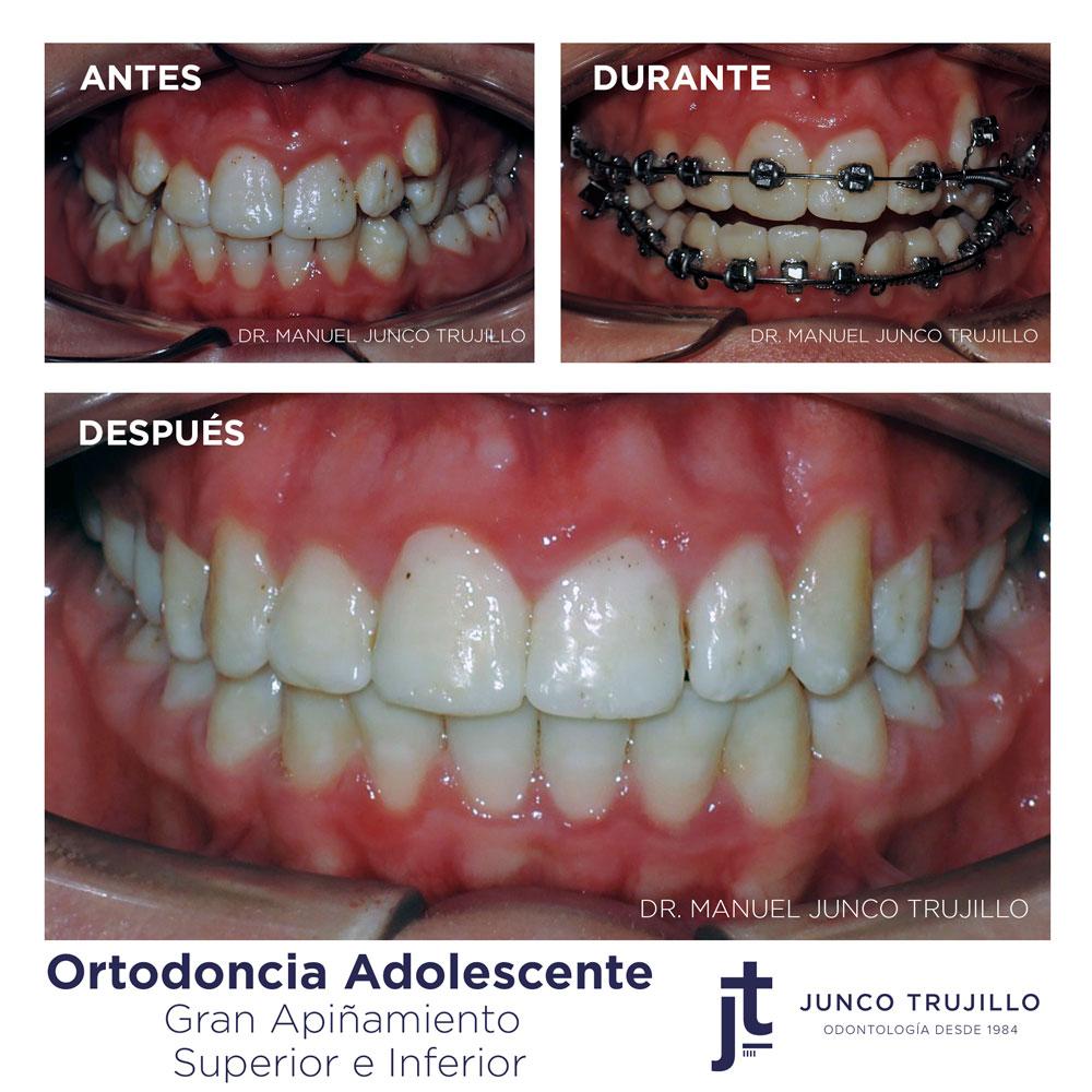 ortodoncia-brackets-adolescente-palencia