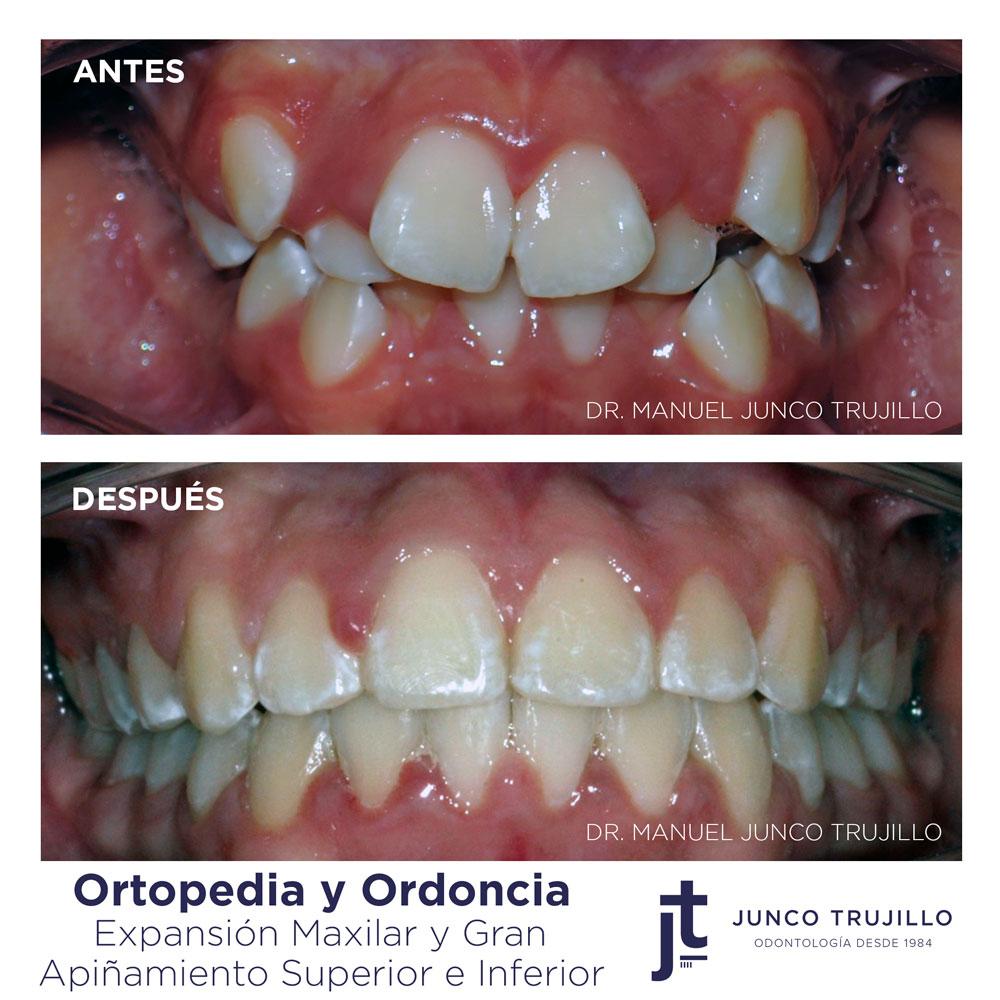 ortopedia-ortodoncia-en-palencia