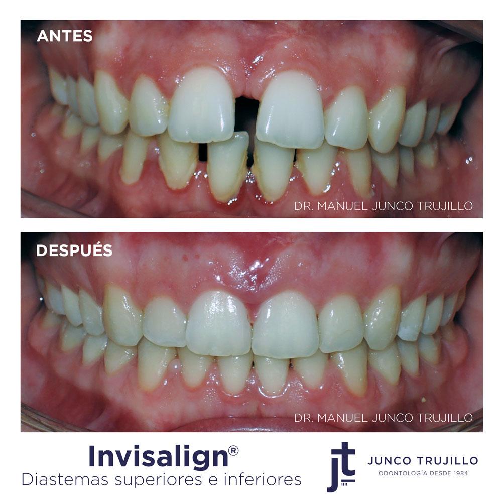 invisalign-diastemas